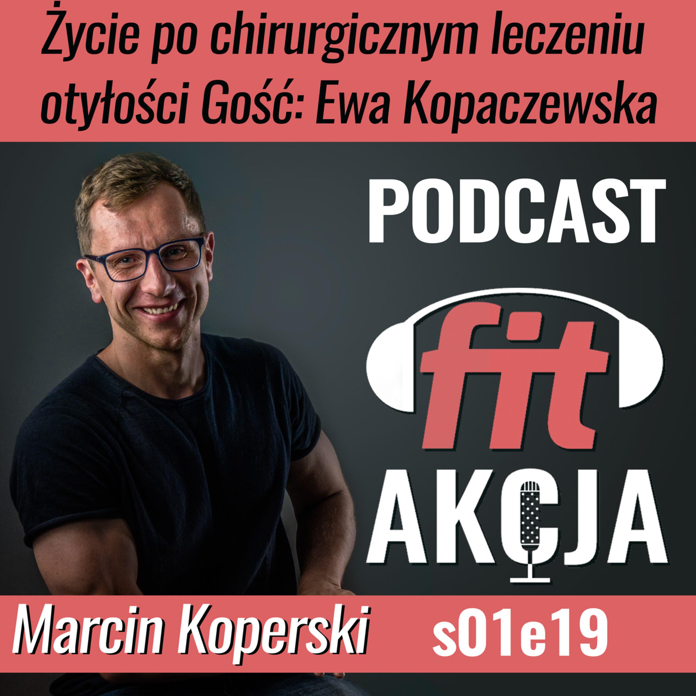 Życie po chirurgicznym leczeniu otyłości Ewa Kopaczewska