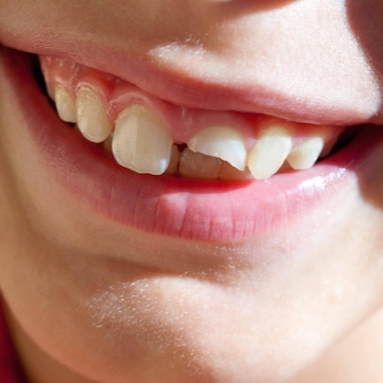 Será que a fratura de um dente é um dano irreparável?