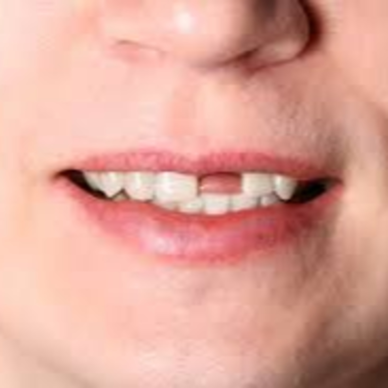 Perda de dentes