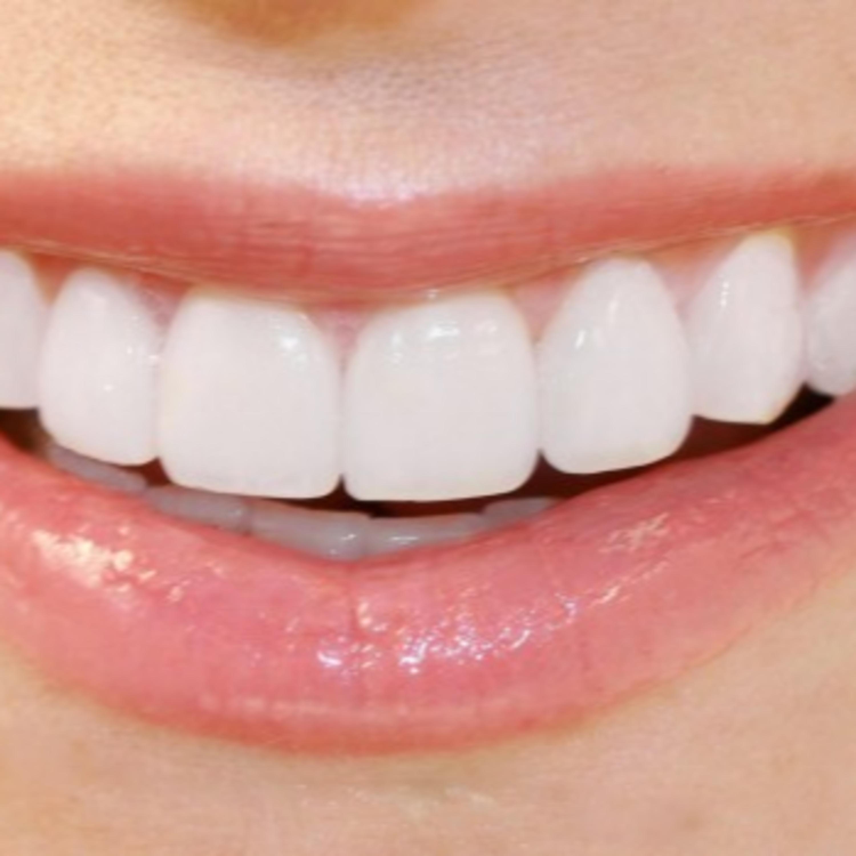 Consiga dentes novos em apenas um dia