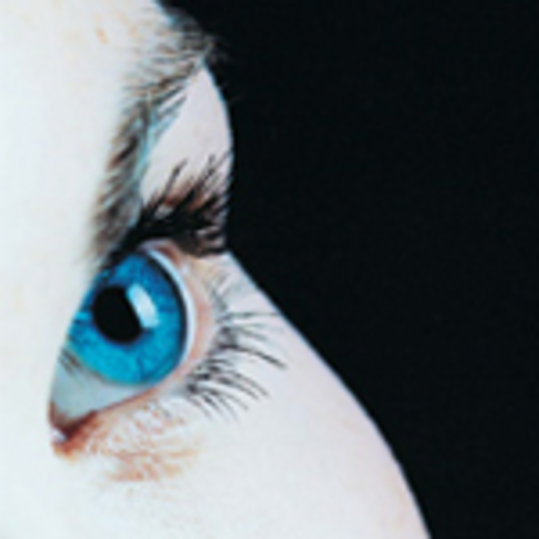 Bonus: Managing ocular allergy in optometric practice