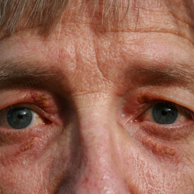 THE TYPE OF TREATMENTS AND THEIR COST FOR XANTHELASMA REMOVAL by