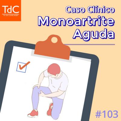 Episódio 103: Caso Clínico de Monoartrite Aguda