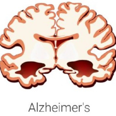 Researchers Reveal Alzheimer's Treatment That Fully Restores Memory Function • A podcast on Anchor